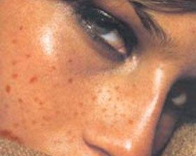 Пигментация и гиперпигментация кожи лица - причины, лечение