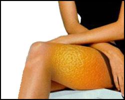 cellulit-bedro
